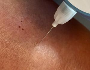 Arc voltaïque entre la pointe et la peau